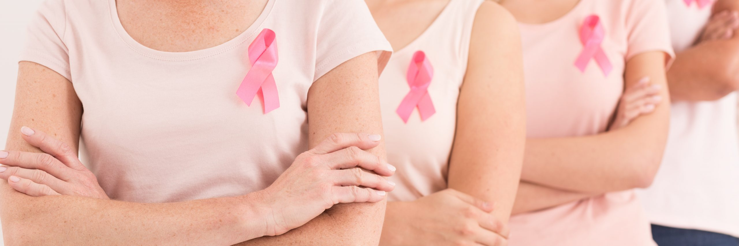 adenocarcinoma de mama